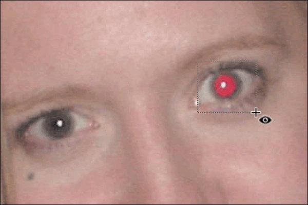از بین بردن قرمزی چشم